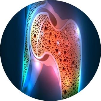 Osteocircle